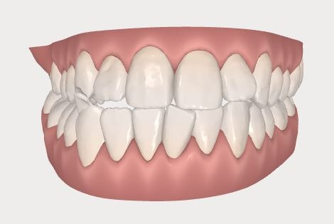 invisalign before scan